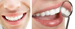 치아보험추천 에이스손해보험 New치아안심보험 상품