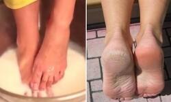 딱딱하고 갈라진 발뒷꿈치 굳은 살, 각질 손쉽게 제거 및 관리하는 방법