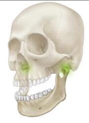 턱관절교정치료와 턱관절장애