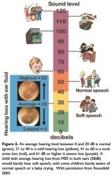 삼출성중이염 진료지침 (2016년,미국 이비인후과-두경부외과학회)