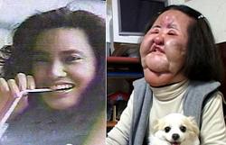 선풍기 아줌마의 죽음이 불쾌하다는 일본! 도대체 왜?