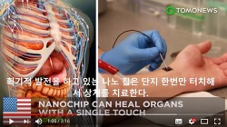 나노 칩(NANOCHIP)으로 사람을 치료하는 세상