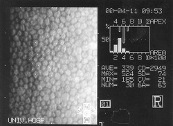 각막내피세포 평가 기계 : 경면현미경(Specular Microscopy, SM) - CD(세포밀도), CV(다면성), 6A, HEX(다형성)