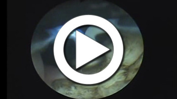 [대구전립선]플라즈마 기화술, 비대증 치료방법