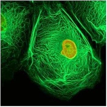 [암 예방에 가장 중요한 식생활]암 예방은 먹는것부터, 항암채소를 알아보자.