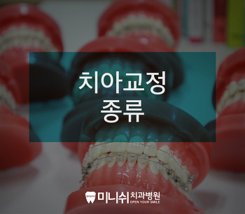 치아교정치과 :: 치아교정 장치 그리고 교정의 종류