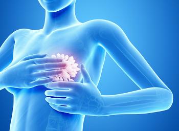생활습관으로 유방암을 예방하자